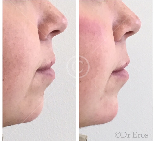 Before and after botox chin filler Juvederm