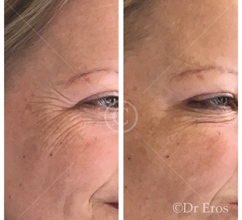 Before and after botox crows feet eye wrinkles