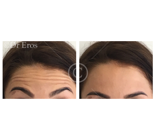 Before and after botox forehead lines Corrugator lines