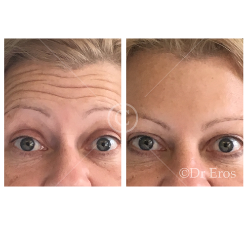Before and after anti-wrinkle forehead lines