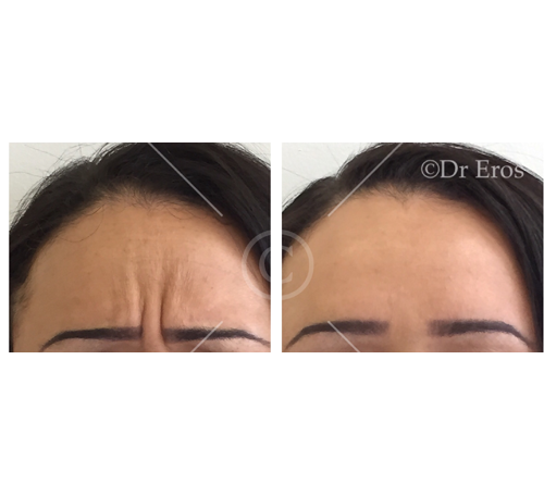Before and after anti-wrinkle frown lines (Giabellar lines)