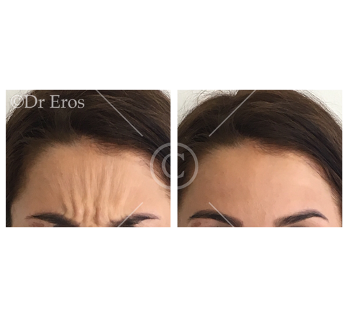 Before and after anti-wrinkle frown lines