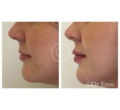 Before and after lip fillers Melbourne Botox Dr Eros
