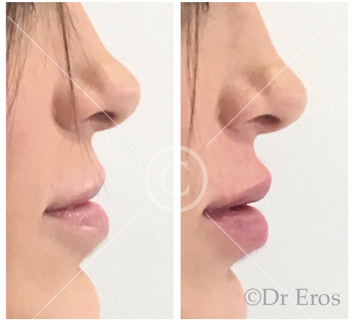 Before and after lip fillers Melbourne Botox