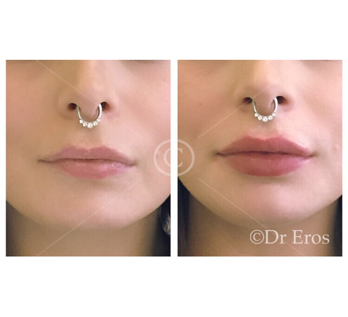Before and after lip fillers and elevation