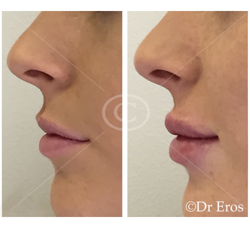 Before and after lip fillers botox freeze