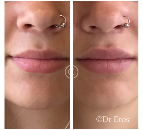 Before and after lip fillers cosmetic doctor eros