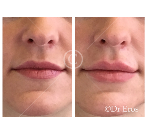 Before and after lip fillers cosmetic doctor lip enhancement