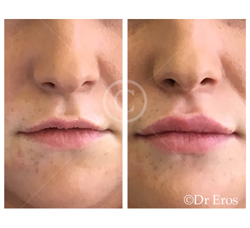 Before and after lip fillers cosmetic lips
