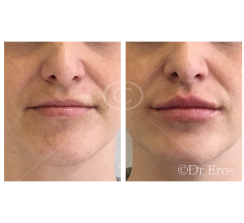 Before and after lip fillers excess top elevation