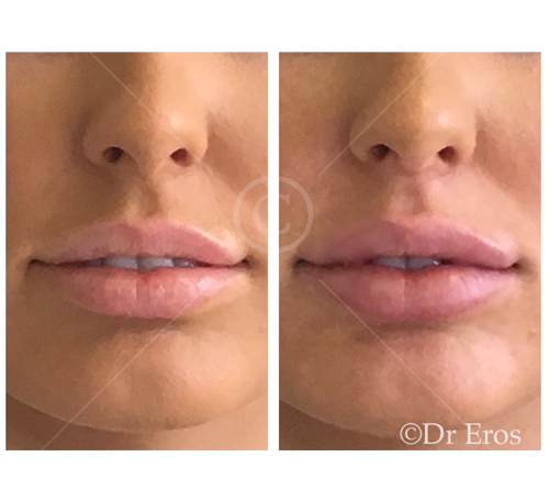 lip fillers in Melbourne