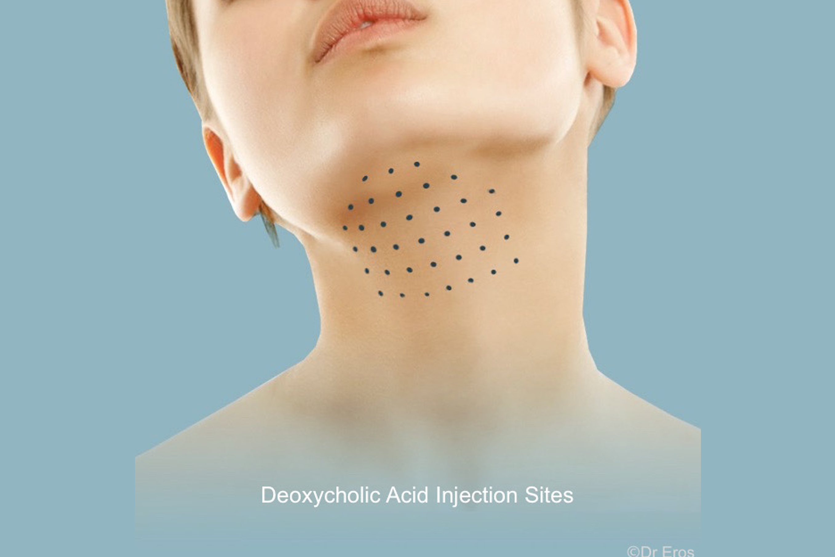 Kybella Belkyra injection
