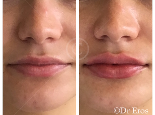 Lip Filler Before & After