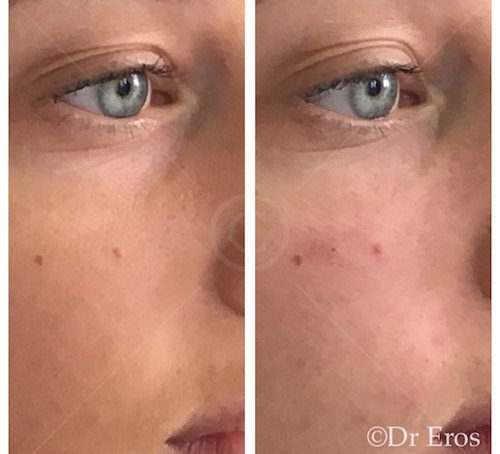 Before & After Tear Trough Filler